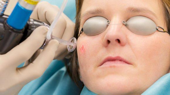 Von der allgemeinen bis zur hochspezialisierten Dermatologie ist in der Hautarztpraxis alles möglich. Hier sieht man, wie die Haut mit einem Laser behandelt wird. Klick dich durch, um mehr zu erfahren!
