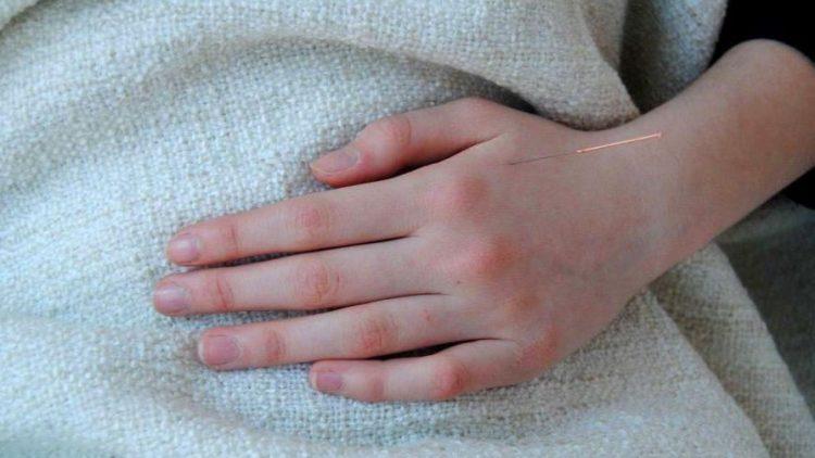 Akupunktur kann bei einer Vielzahl von Beschwerden eingesetzt werden.