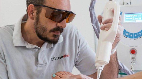 """Heißer Laser auf kühler Haut - so ist die Behandlung bei Daniel Grupp im Studio """"Der Tattoodieb"""" besonders schmerzarm."""