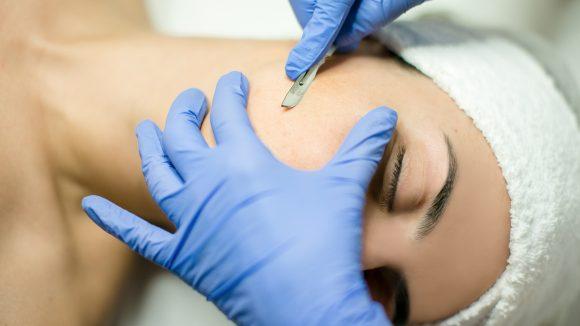 Gesicht einer Frau wird behandelt mit Skalpell bei einer Dermaplaning-Behandlung