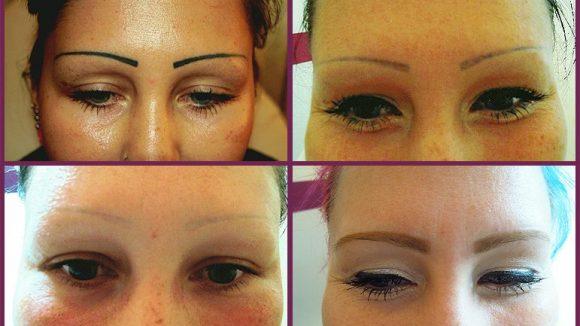 Bild von tattooentfernung bei Augenbrauen