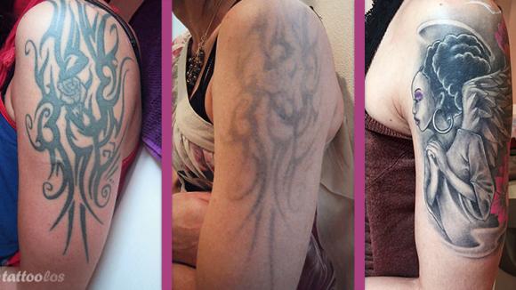 Vorher/Nacherbild von einer Tattooentfernung auf Oberarm