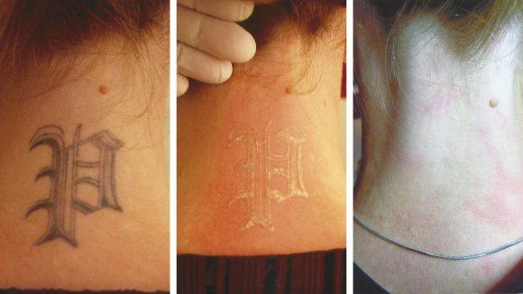 Bild von tattooentfernung im Nacken
